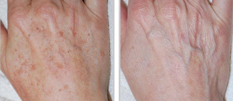 термолифтинг кожи лица - метод аппаратной косметологии