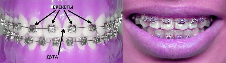 выравнивание зубов брекет система
